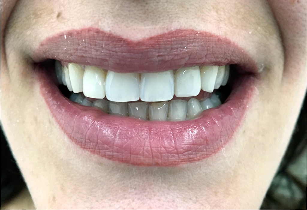 estética dental Terrassa