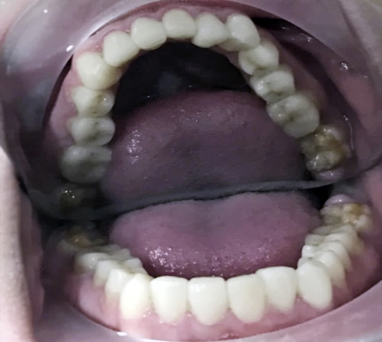 estética dental Terrassa
