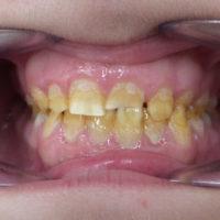 estética dental en Terrassa