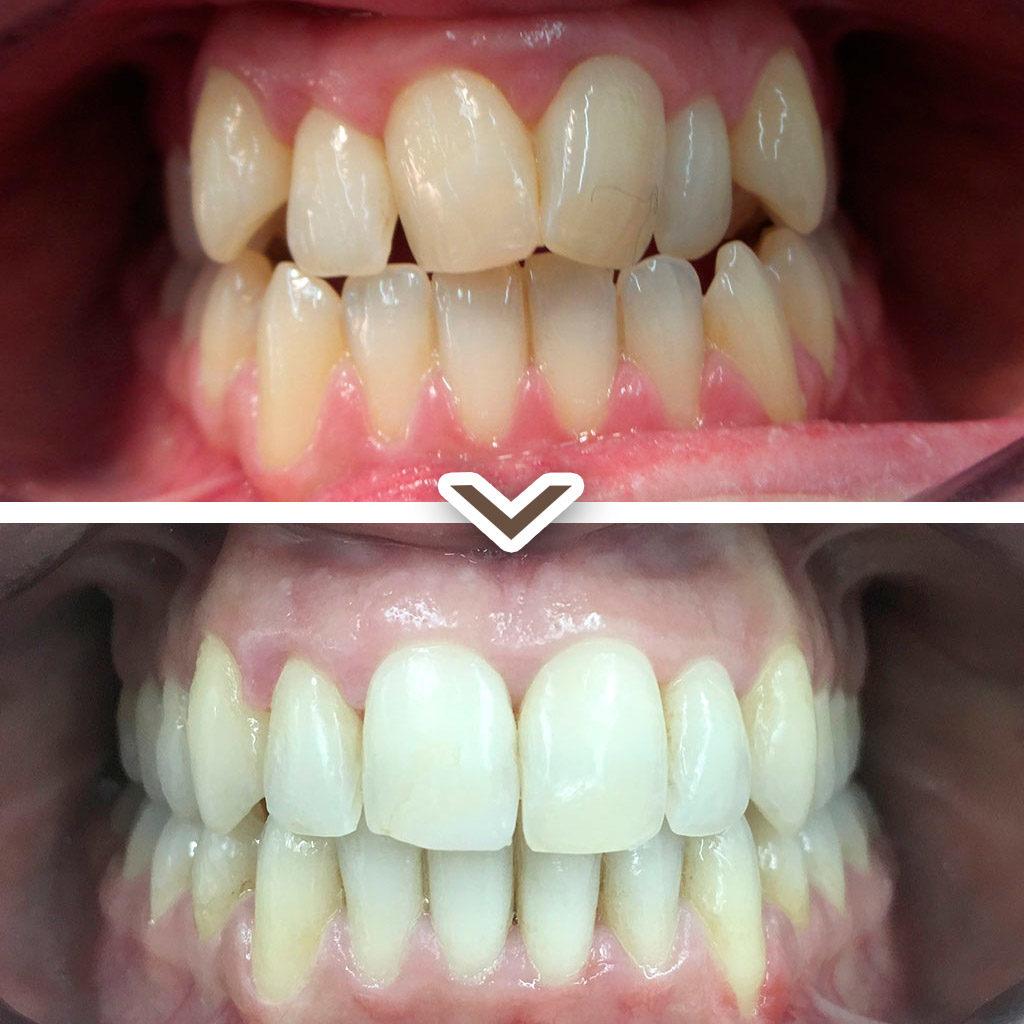 dientes antes y después