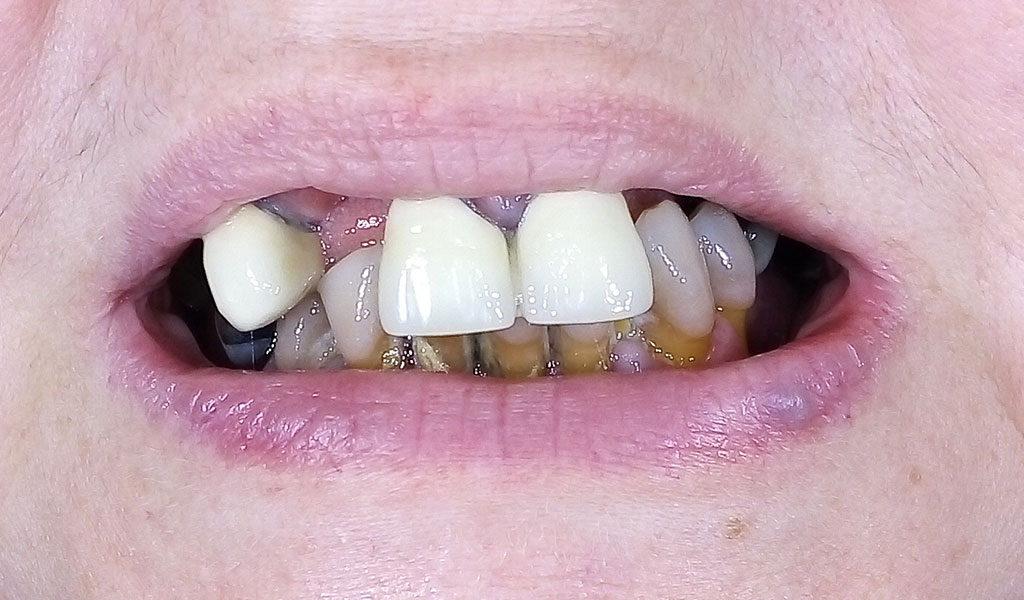 caso real de implantes dentales