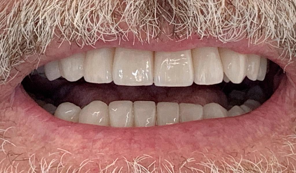 caso real de rehabilitación dental