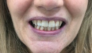 caso real estética dental Terrassa