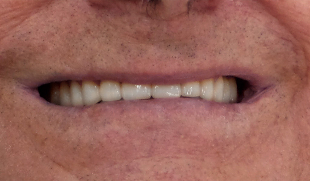 caso real estética dental