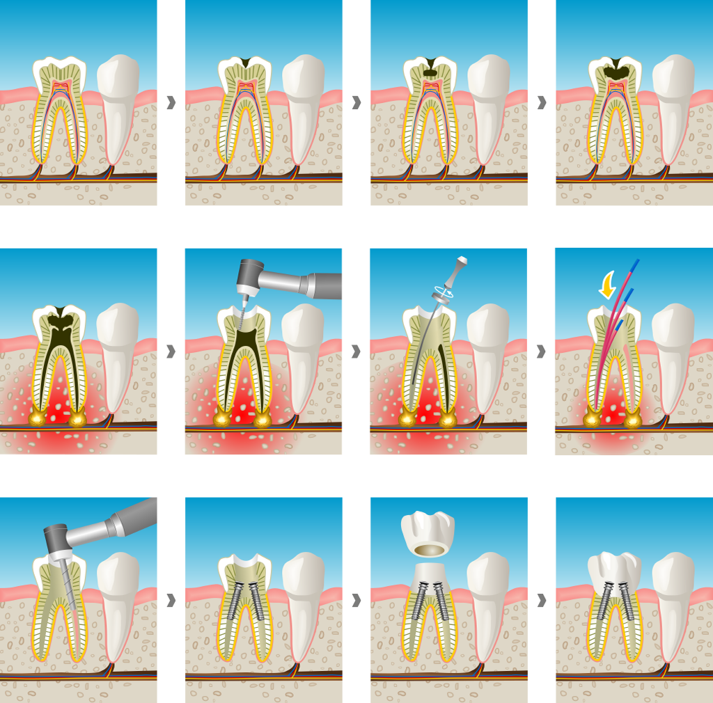 endodoncia en Rubí