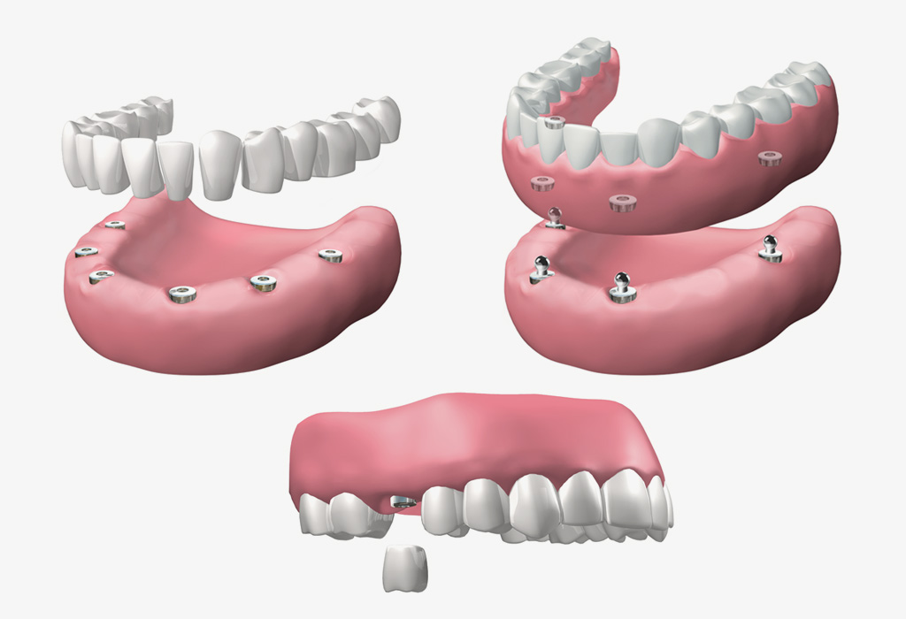 implantes dentales en Terrassa