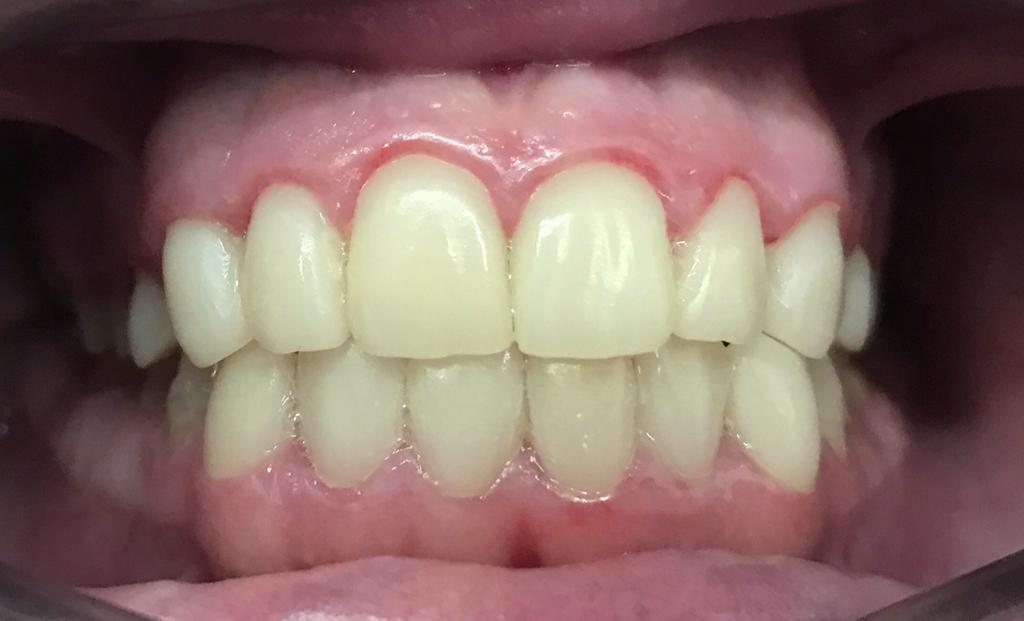 prótesis dental en Terrassa