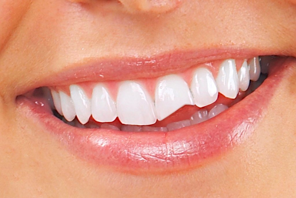 urgencias dentales en Terrassa